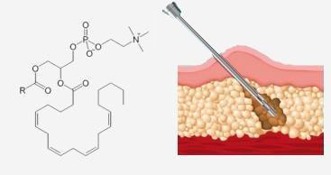 Fosfatidilcolina - mesoterapia a Milano